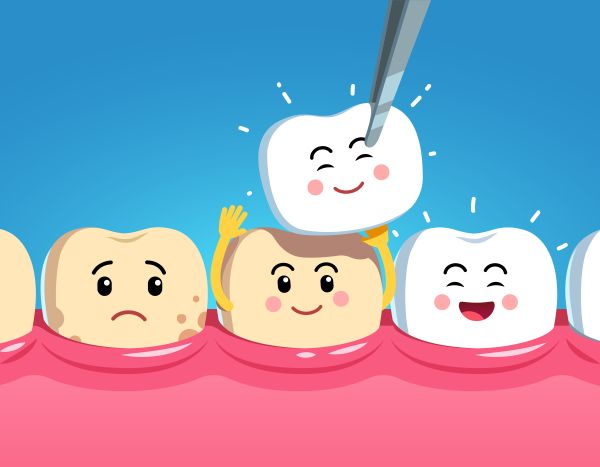 Should I Get Dental Crowns Or Veneers?