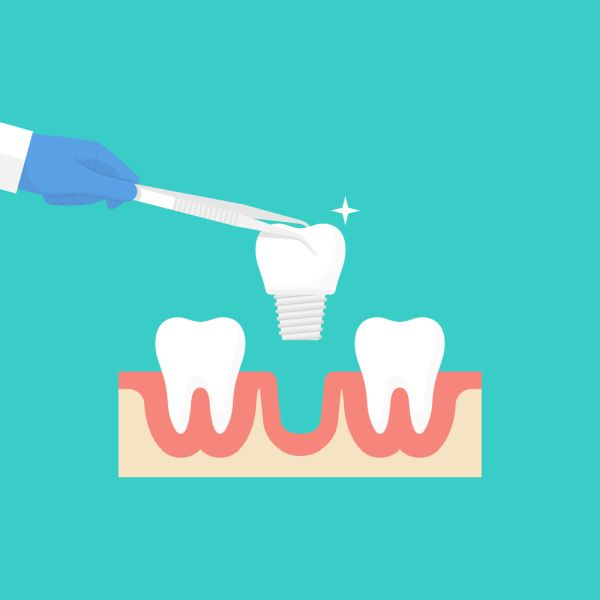 Advantages And Disadvantages Of Dental Implants